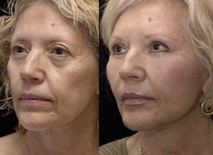 Facial Exercises Before and After 1