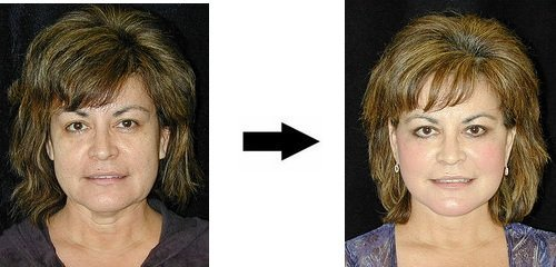 Facial Exercises Before and After (The 5 Important Reasons Why!) 1